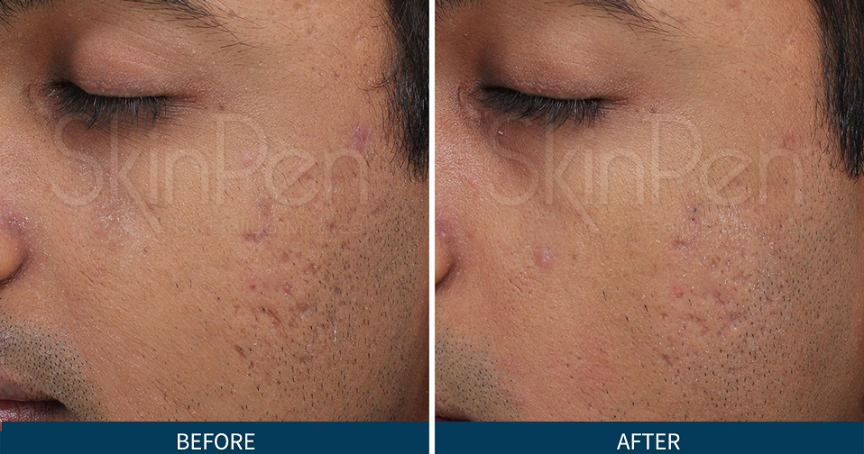 Resultater af behandling med SkinPen